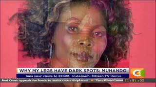 Citizen Extra: Why my legs have dark spots-Rose Muhando