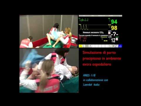 Simulazione di Parto Precipitoso in Ambiente Extra Ospedaliero