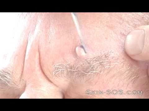 Wart Warts Removed in 15 Minutes