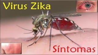 VIRUS ZiKA: Síntomas principales de la infección por el VIRUS SIKA