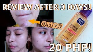 AFFORDABLE FACIAL WASH FOR OILY AND ACNE PRONE SKIN! | KATH MELENDEZ