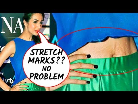 Xxx Mp4 5 Bollywood Actresses Flaunting Their Stretch Marks 3gp Sex