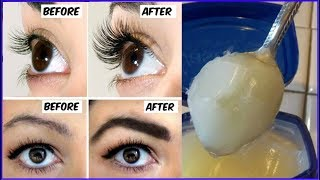 How To Grow Thicker Eyebrows & Eyelashes In Just 14 Days   100% Working   Simple Beauty Secrets