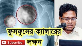 ফুসফুসের ক্যান্সারের লক্ষন (Lung Cancer Symptoms)
