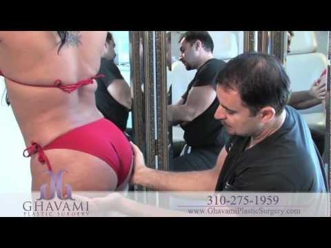 Brazilian Butt Lift by Fat Transfer in Beverly Hills by Dr. Ashkan Ghavami