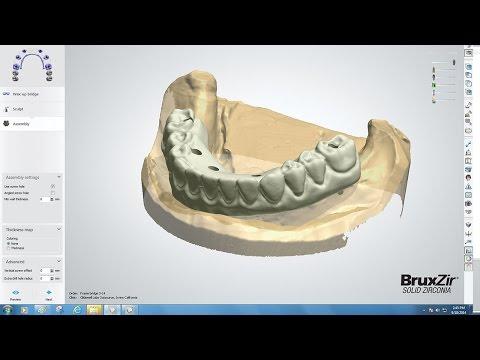 Xxx Mp4 CADCAM Tools Tips Amp Tricks BruxZir FullArch Implant Prosthesis Design Vol 1 Issue 3 3gp Sex