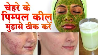 pimple ke gharelu upay 100% कामियाब केवल 7 दिन में जड़ से ख़त्म | how to remove pimples from face