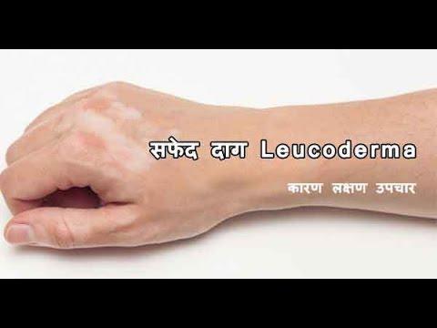 सफ़ेद दाग के बारे में जानकारी. Safed Daag (Vitiligo) Ka Ilaj in Hindi