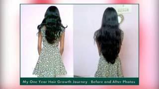 2 WEEK CHALLENGE ❣ Stop Severe Hairfall Dandruff & Regrow || 2 हफ्ते में बढ़ाएं 2 इंच घने लंबे बाल