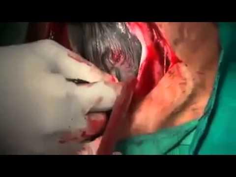 Xxx Mp4 Just Dr S Business Bangladesh Hospital 3gp Sex