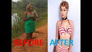 #NAIROBI DIARIES NOTI FLOW BEFORE AND AFTER PICS # LIGHTENING HER SKIN