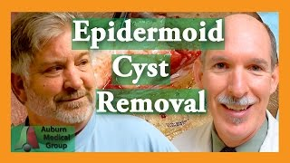 Epidermoid Cyst Removal INTACT  Auburn Medical Group