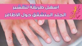 اسهل طريقة لتقشير الجلد المتشقق حول الاظافر