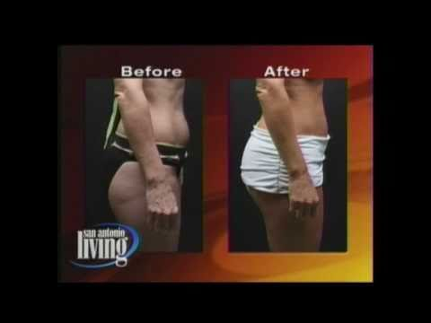 Brazilian Butt Lift Benefits & How it works Before and After photos