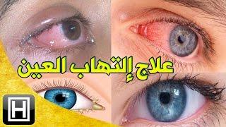علاج إلتهاب العيون طبيعيا والتخلص من العمش وإحمرار العين في المنزل بأرخص وأسهل طريقة