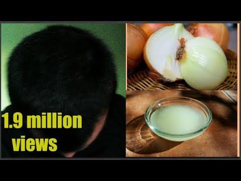 Xxx Mp4 प्याज का रस इस प्रकार लगाने से होगा पूरा फायदा ॥ Onion Juice For Hair Loss And Hair Grow 3gp Sex