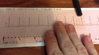 Looking at a normal 12 lead ECG