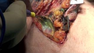 Operation 21 - Excision of Central Subareolar BrCa Tumor.mov
