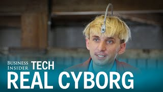 This real-life cyborg has an antenna implanted into his skull