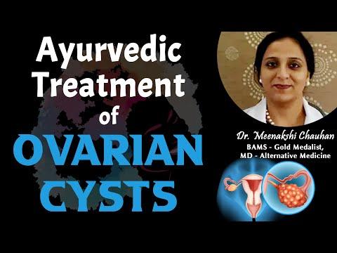 Ayurvedic Treatment of Ovarian Cysts - Dr  Meenakshi Chauhan, Chandigarh