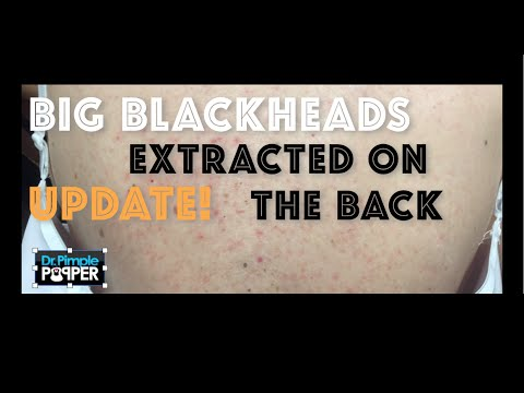 Update on Big Back Blackheads. Her back, one month later.For medical education- NSFE.