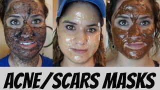 Acne/ Redness/ Scars Masks!