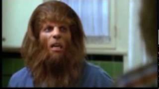 Teen Wolf (De pelo en pecho)