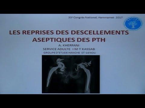 Xxx Mp4 Reprise Du Descellement Mécanique De La PTH 3gp Sex