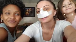 Diario da minha rinoplastia - Dias 4,5 e 6