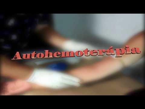 Autohemoterapia Explicación y Aplicación