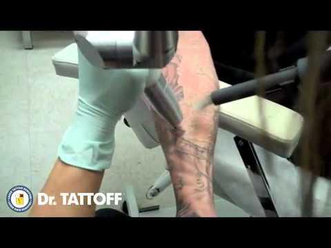 Eliminando un tatuaje del brazo