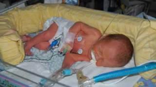 32 week Preemie Samuel's Month in NICU and Year
