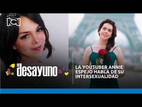 Xxx Mp4 El Desayuno La Youtuber Annie Espejo Habla De Su Intersexualidad 3gp Sex
