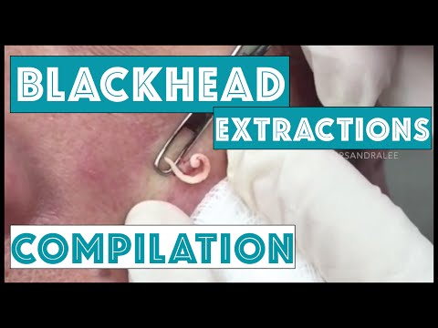 Long and Satisfying Blackhead Extractions A Dr Pimple Popper Compilation