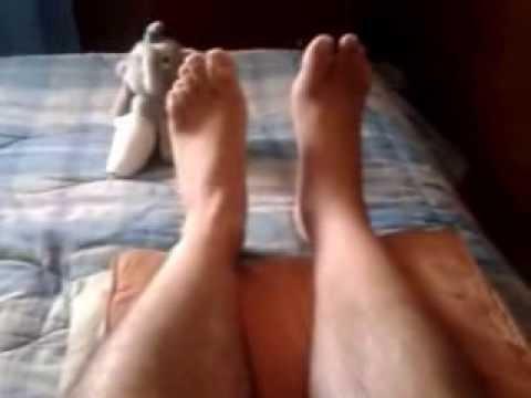 fractura de tobillo después de 2 meses y 15 días de la operación Claudio.