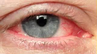 Eye cancer symptoms