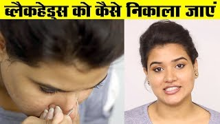 How to Remove Blackheads from Nose / Face (Hindi)