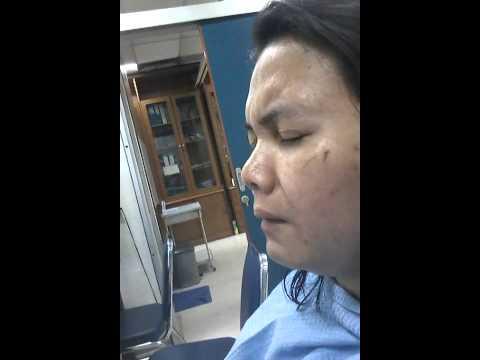 Xxx Mp4 Pengambilan Tampon Operasi Sinusitis Yani 3gp Sex