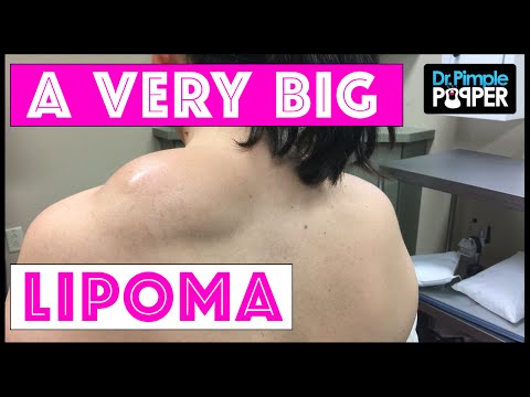 Excision of a Large Lipoma on the Shoulder using Tumescent Technique