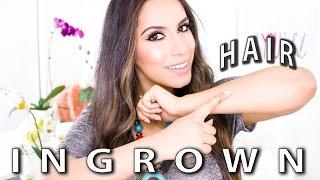 Ingrown Hair (DIY) How to Get Rid of Ingrown Hairs Step-by-Step (Natural Skin Care) | Himani Wright