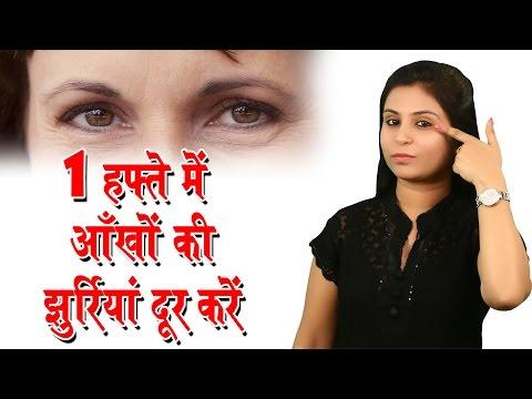 Xxx Mp4 एक हफ्ते में आँखों की झुर्रियां दूर करें Home Remedies For Wrinkles On Under Eyes Beauty Tips 3gp Sex