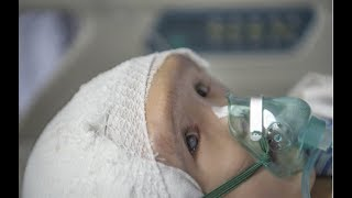 Baby Born With A Rare Brain Condition