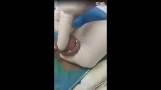 circumcision of a penis