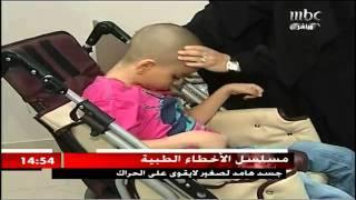 خطأ طبي يدمر حياة الطفل عدنان واسره بكاملها ووزير الصحة لا حياة لمن تنادي