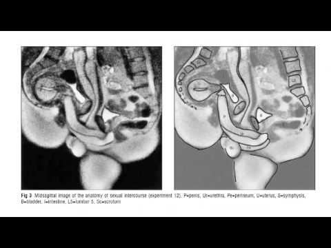 Improbable Research Collection #119: MRI Sex