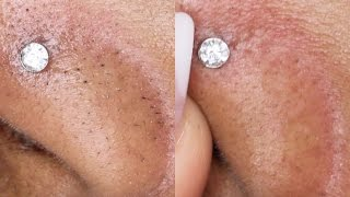 How To Remove Black/White Heads ! 2 WAYS! Queenii Rozenblad