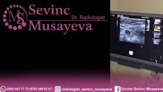 doktor sevinc musayeva
