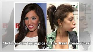Celebrity face change mysteries...