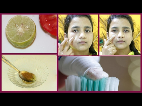 रातो ही रात पिंपल से पाए छुटकारा - How To Remove Pimples, Scars Overnight | Acne Treatment in Hindi