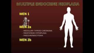 Multiple Endocrine Neoplasia
